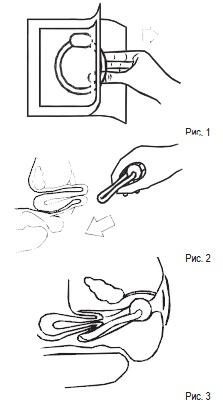 установка уретального пессария